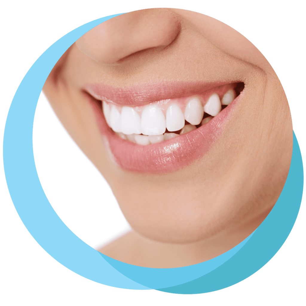 Teeth Whitening Canberra